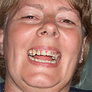 a picture of rotting teeth, link opens new PDF browser window